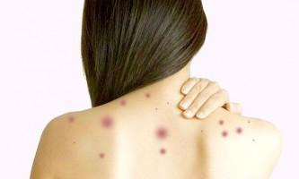 Швидка ліквідація прищиків на тілі: основи лікування і домашні рецепти
