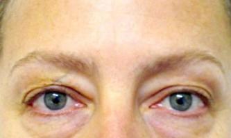 Ефективний спосіб позбутися від мішків під очима