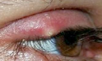 Як швидко вилікувати ячмінь на оці