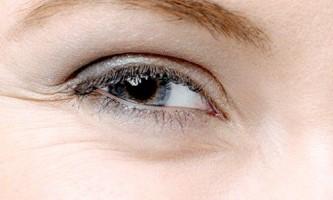 Як позбутися від «гусячих лапок» - зморшок навколо очей