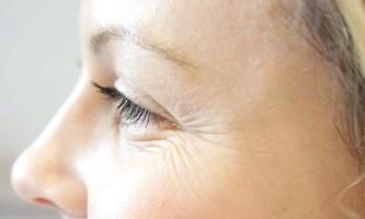 Як позбутися від «гусячих лапок» навколо очей?