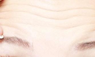 Як позбутися від мімічних зморшок під очима