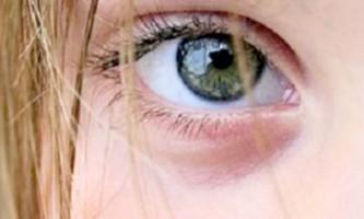 Як лікувати «холодний» ячмінь на оці в домашніх умовах народним засобами
