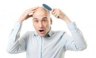 Як зупинити випадіння волосся у чоловіка
