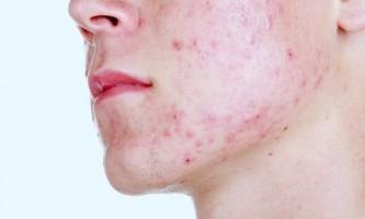 Які засоби допомагають швидко вилікувати внутрішні прищі на шкірі обличчя?