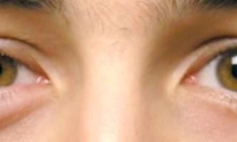 Лікування ячменю на оці лікарськими препаратами