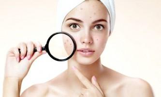 Які антибіотики можна приймати від прищів на обличчі?