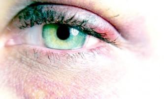 Відкрийте ефективні засоби для позбавлення від синців під очима