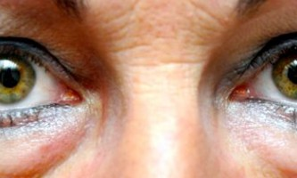 Чому з`являється висип під очима у дорослих?