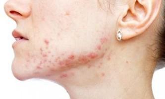 Підшкірні прищі на обличчі, причини утворення, методи лікування, домашні засоби усунення, профілактика