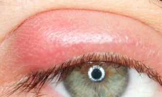 Причини і лікування ячменю на оці