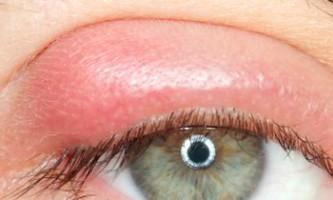 Причини і лікування пухлини верхньої повіки над оком