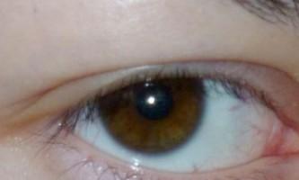 Причини і лікування пухлини, свербіння і болю нижньої повіки ока