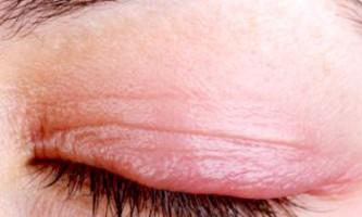 Причини і лікування почервоніння і свербіння верхньої повіки очей