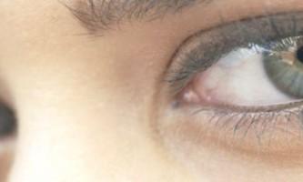 Причини і лікування синіх кіл під очима