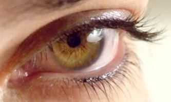 Причини і лікування темних кіл під очима