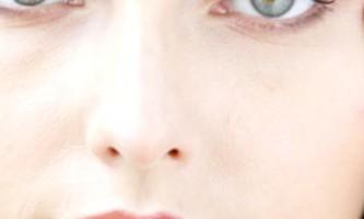Причини і способи лікування жовтих кіл під очима у жінок