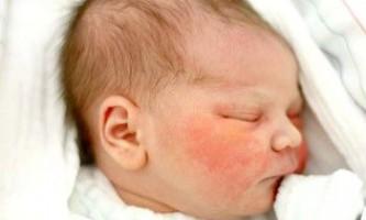 Причини, профілактика і перша допомога при висипу на обличчі у грудничка