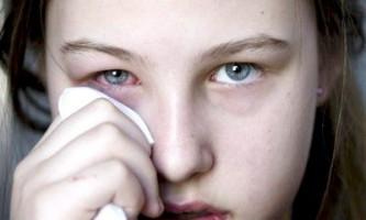 Причини виникнення і лікування халязиона верхнього і нижнього століття