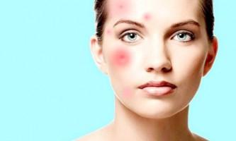 Принципи усунення запалення на обличчі і домашні лікувальні рецепти