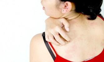 Перевірені засоби від нестерпного та дратівної свербіння шкіри