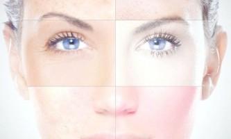 Дізнайтеся про способи визначення типу шкіри обличчя і основи догляду за ним