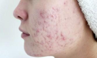 Вірні засоби, що допомагають забути про болючі підшкірних прищах на обличчі